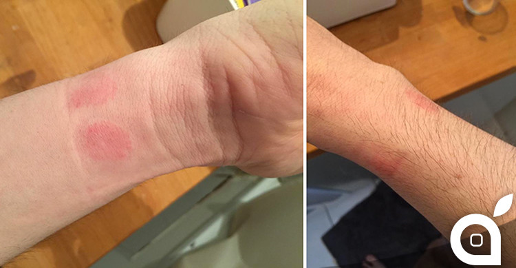 Apple-Watch-Skin-Irritation